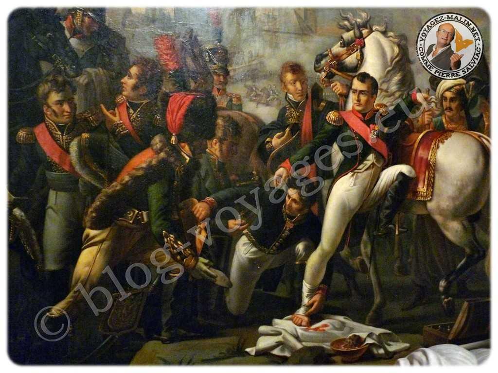Napoléon Ier, blessé au pied devant Ratisbonne, est soigné par le chirurgien Yvan, 23 avril 1809, peinture de Pierre Gautherot